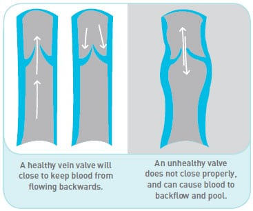 Vein valve illustration